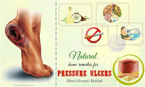 Treatment For Bed Sores Home Remedies by 20 Home Remedies For Scabies In Infants And