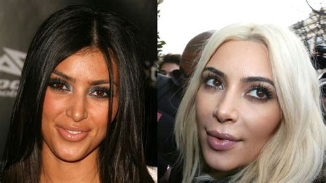 kim kardashian plastic surgery before after pictures 2015 kim kardashian before and after inside her secret surgery