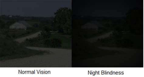 night blindness   nyctalopia  treatments