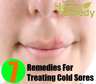 7 herbal remedies for treating cold sores search home remedy