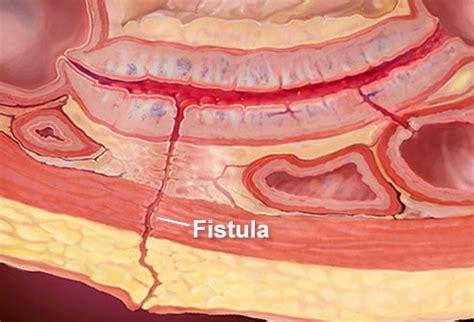 Abdominal Fistula Pictures