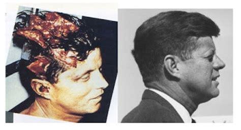 james fetzer: jfk: bethesda autopsy photos not jfk