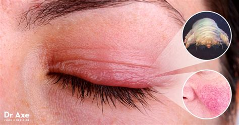 blepharitis images blepharitis 7 treatments to soothe an inflamed