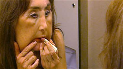 grey s anatomy face transplant actor connie sawyer connie sawyer health