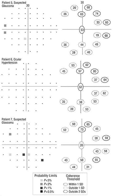 Motion Automated Perimetry Identifies Early Glaucomatous
