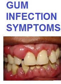 gum infection symptoms and how to get rid of them at home