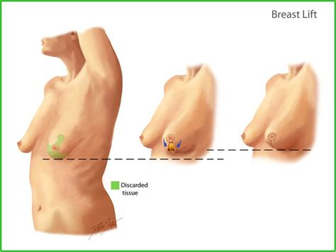 Breast Lift breast reconstruction oncoplastic surgery johns breast center