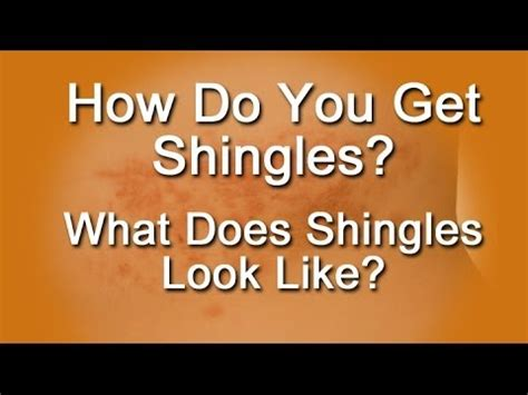 what does to you how do you get shingles what does shingles look like