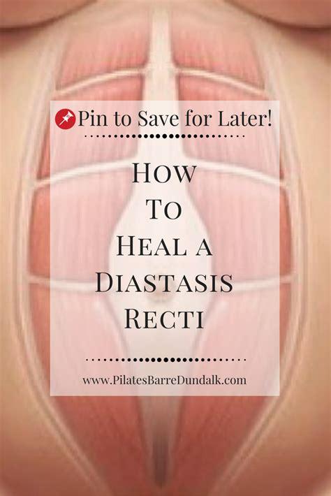 heal  diastasis recti pilates barre dundalk