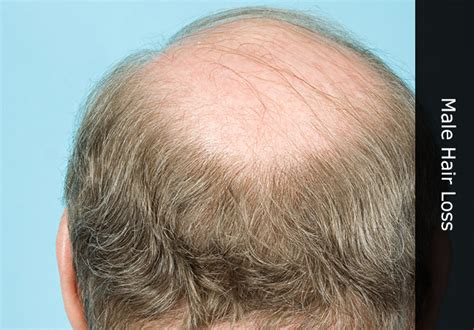 male pattern baldness meaning in urdu hair regrowth technology 2013 latest hair regrowth