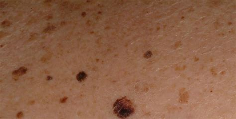 skin cancer skin cancer as related to skin pictures