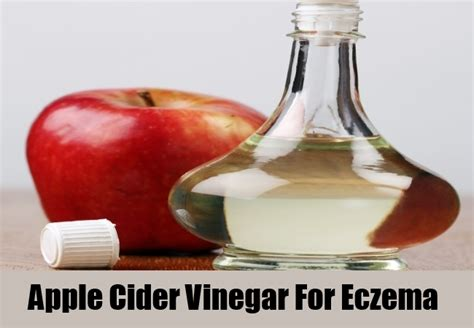 Apple Cider Vinegar Detox Rash by 5 Home Remedies For Eczema Treatments Cure For