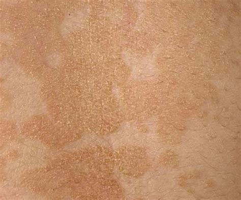 light colored spots on skin light colored spots on skin decoratingspecial com
