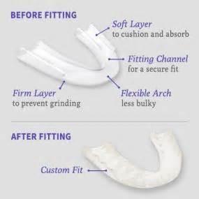comfort dental powers the doctor s nightguard advanced comfort dental protector