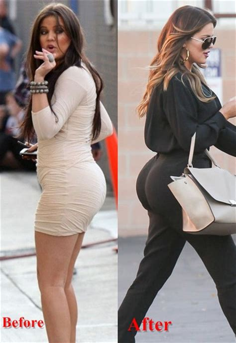 kardashian sisters butt implant photos did kim khloe kylie khloe kardashian before and after butt implants or injections