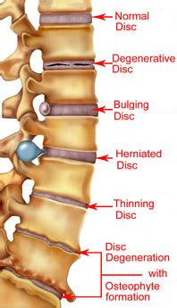 the gallery for   > herniated disc l4 l5