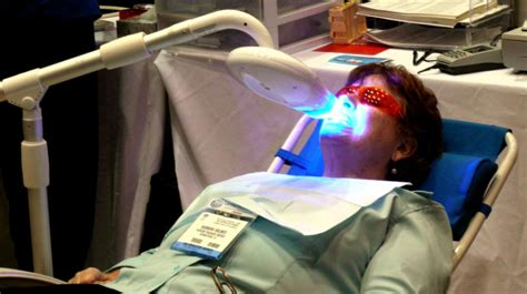 teeth whitening procedures compared dentist procedures