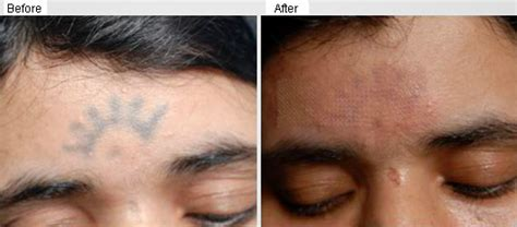 eye tattoo removal laser laser tattoo removal dermatologist malaysia
