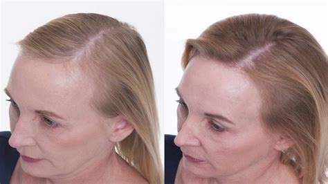 One Sided Hair Loss Chopped In Women   the truth about women s hair loss kasli s story