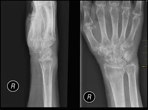 alimentazione per osteopenia osteoporosi ed osteopenia osteoportal