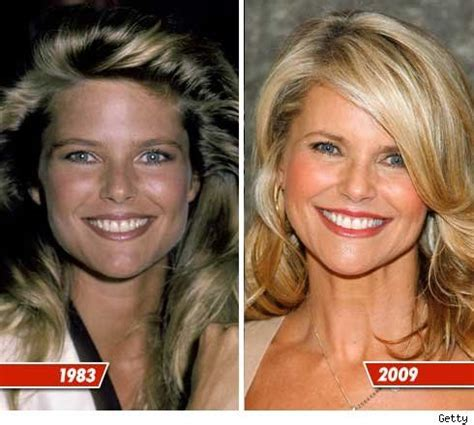 Christie Brinkley Gets Emergency Surgery by Christie Brinkley Plastic Surgery Before And After