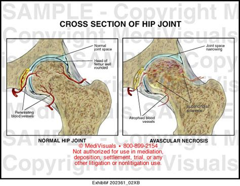 cross section of femur cross section of hip joint medical illustration medivisuals