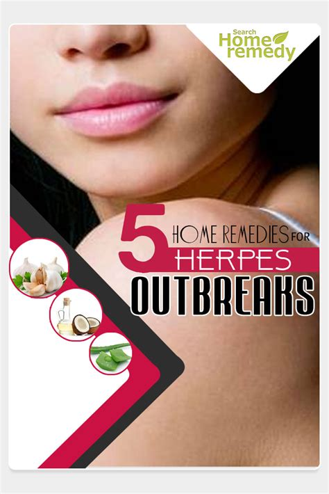 5 home remedies for herpes outbreaks treatments