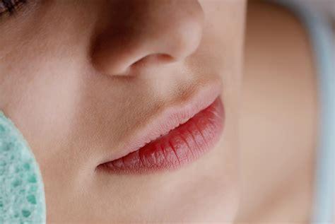 herpes bocca interno rimedi naturali per l herpes virus come prevenirlo e