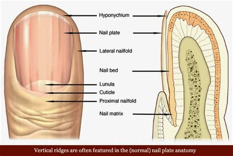 brittle nails point to thyroid problem the peoples pharmacy image gallery hypothyroidism fingernails
