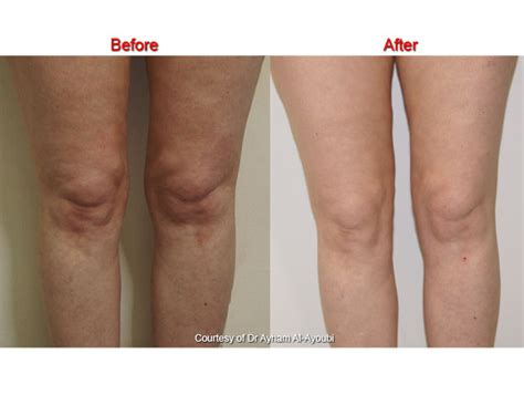 knee lift surgery before and after photos smartlipo for knees