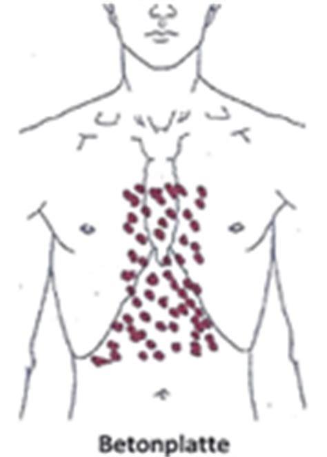 innere unruhe druck auf der brust druck auf der brust engegef 252 hl in der brust
