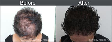 tattoo aftercare jacuzzi hair simulation hair studio spa medispa euro reflections