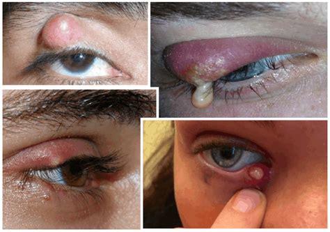 imagenes de ojos infectados remedios naturales para eliminar los orzuelos
