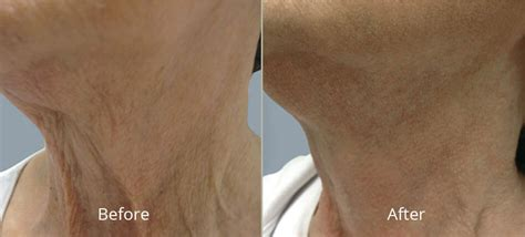 tattoo removal tulsa ok tulsa laser hair removal laser skin resurfacing in tulsa