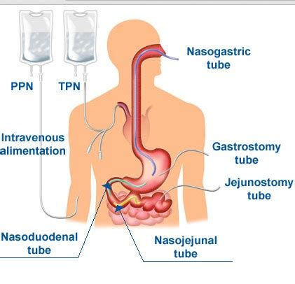 total parenteral nutrition definition, components
