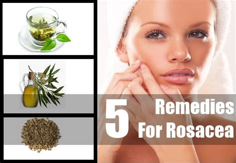 home remedies for rosacea top 5 herbal remedies for rosacea rosacea treatment