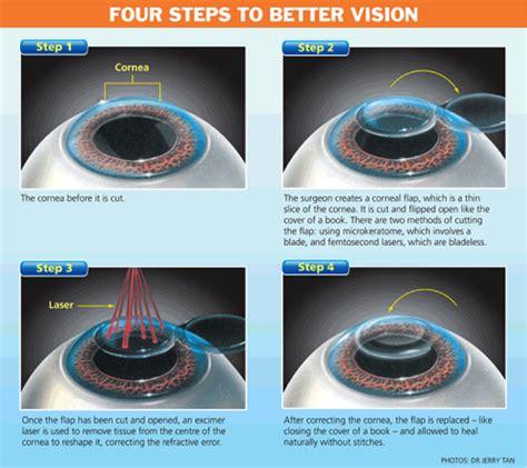 Correction Type lasik tags bense vision