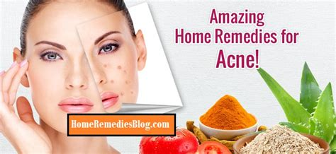how to get rid of acne causes 19 home remedies home