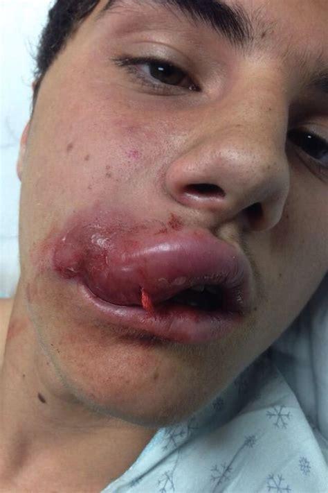 non dangerous challenges what is the jenner lip challenge is it dangerous
