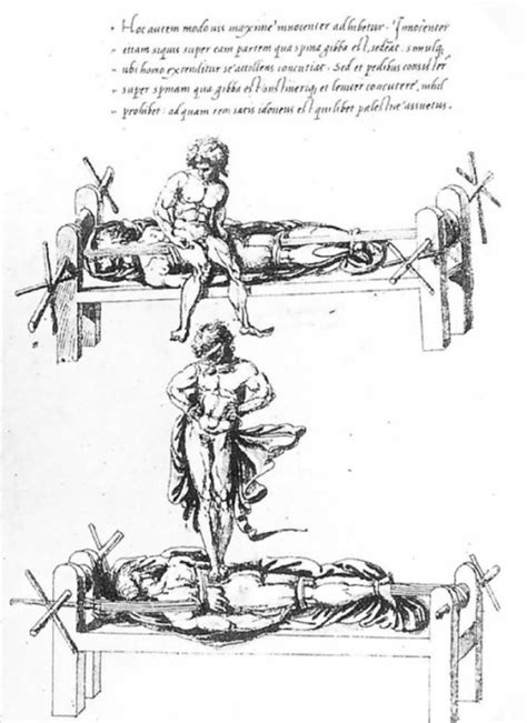 hippocratic bench a drawing attributed to vidus viceus 16th century ad