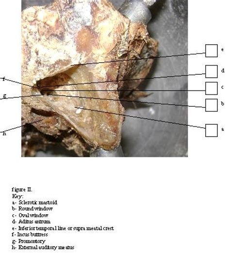 Temporal Bone Dissection Guide cadaver bone