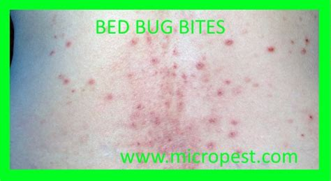 how to tell bed bug bites from other bites bed bugs facts symptoms treatments