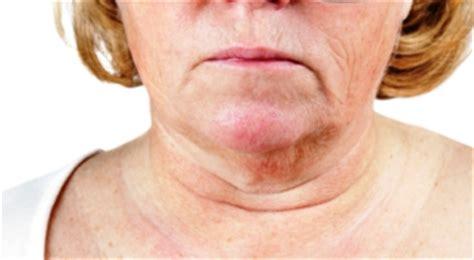 older womens turkey necks integumentary system flashcards easy notecards