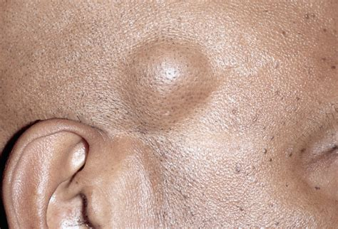 lipoma pictures lipoma causes symptoms treatment removal pictures surgery prevention