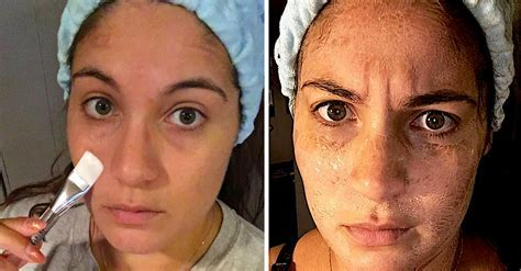 I Tried The Hanacure Mask, And Here's What It Did To My Skin
