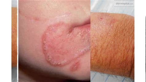 fungal skin infection fungal infection on skin