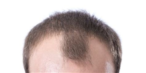 welcome to advanced hair solutions hair loss advisors hair loss in men pro hairlines