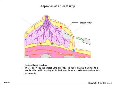 breast diagram drawing aspiration of a breast lump illustrations