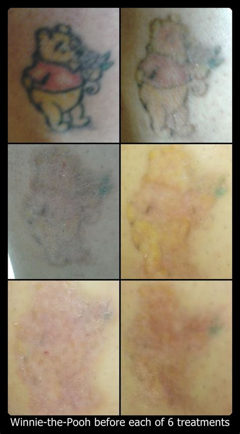 green tattoo removal after 6 treatments winnie the pooh is all but just