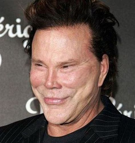 plastic surgery mishaps mickey rourke worse plastic